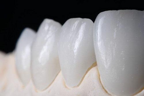 Răng sứ Venus có tốt không?