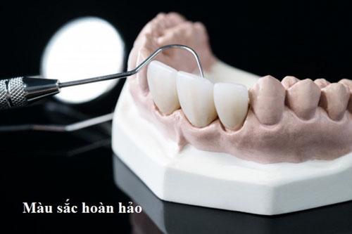 Răng sứ Zirconia mang màu sắc hoàn hảo