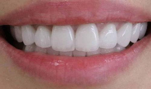 Răng sứ Zirconia mang màu sắc tự nhiên