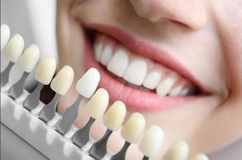 Thẩm mỹ răng tự nhiên