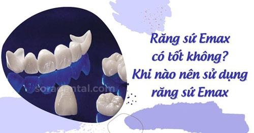 Tìm hiểu chung về răng sứ Emax