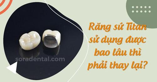 Tuổi thọ răng sứ Titan kéo dài bao lâu?