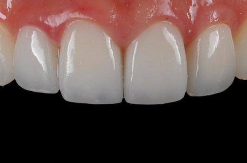 Ưu điểm của răng sứ Cercon HT