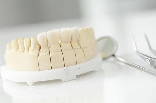 Ưu điểm đặc biệt của răng sứ Cercon