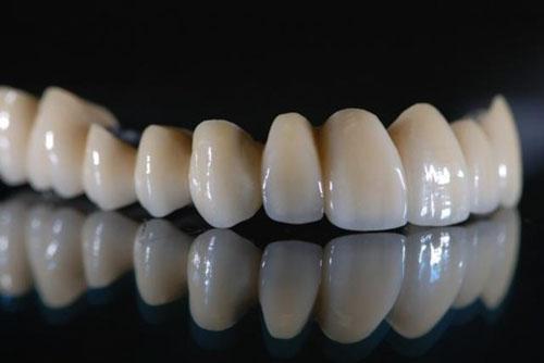 Ưu điểm răng sứ Titan