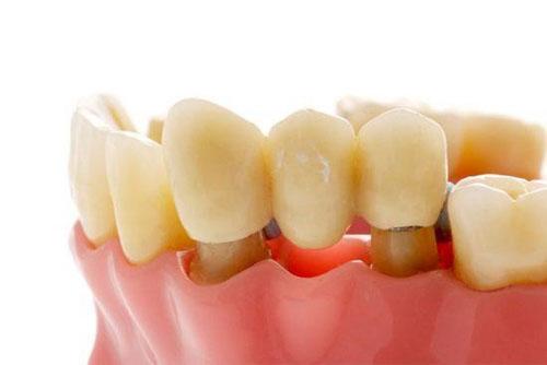 Bắc cầu răng sứ răng mất