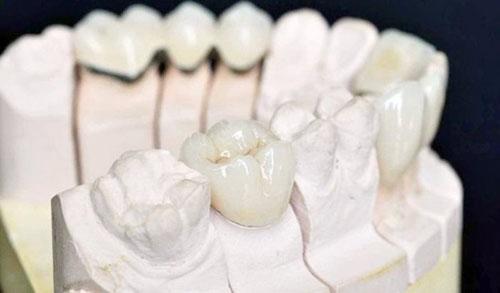 Bảo tồn răng thật lâu dài