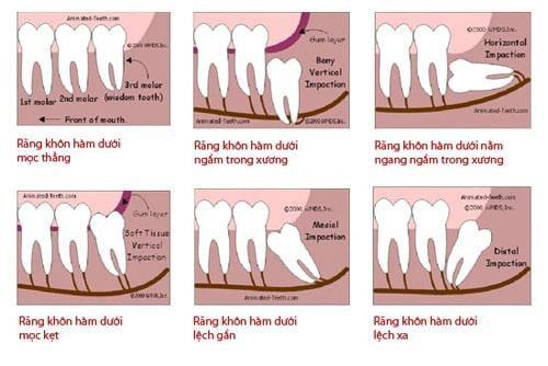 Các trường hợp răng khôn cần nhổ bỏ sớm