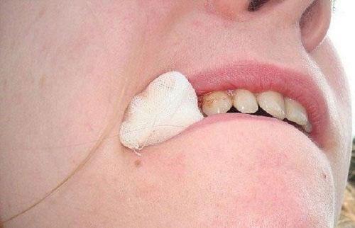 Cầm máu sau khi nhổ răng khôn