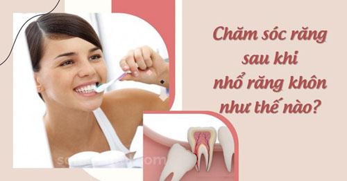 Chăm sóc răng sau khi nhổ răng khôn như thế nào?