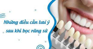 Chế độ ăn uống cần lưu ý sau khi bọc răng sứ