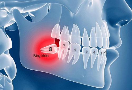 Có nên nhổ răng khôn hay không?