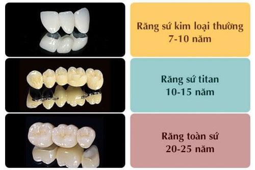 Độ bền của răng sứ toàn sứ lâu dài