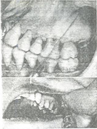 Gây tê hàm trên