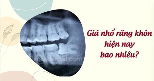 Giá nhổ răng khôn bao nhiêu tiền?