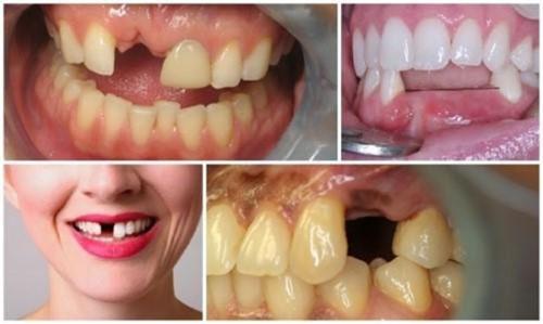 Khi nào nên trồng lại răng đã mất?