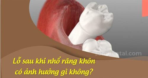 Lỗ sau khi nhổ răng khôn là gì?