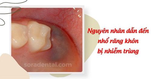 Nguyên nhân dẫn đến nhổ răng khôn bị nhiễm trùng