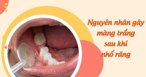 Nguyên nhân gây màng trắng sau khi nhổ răng