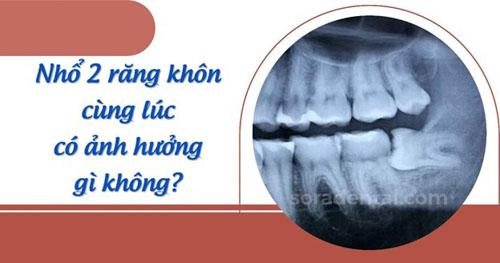 Nhổ 2 răng khôn cùng lúc nguy hiểm không?