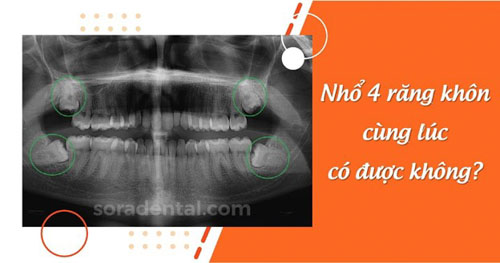 Nhổ 4 răng khôn cùng lúc có sao không?