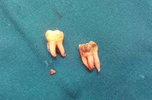 Nhổ bỏ 2 răng khôn cùng lúc