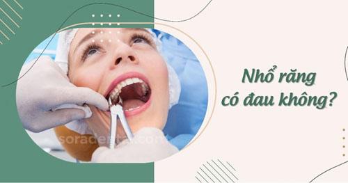 Nhổ răng có đau không?