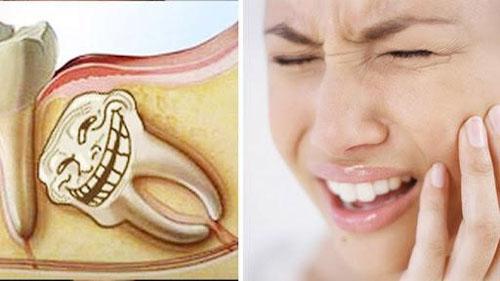 Nhổ răng khôn có đau và nguy hiểm không?