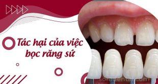Những tác hại của việc bọc răng sứ thường gặp