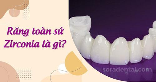 Răng sứ Zirconia Là Gì? Ưu nhược điểm