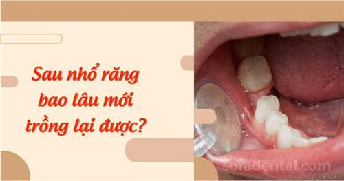 Sau nhổ răng bao lâu thì trồng lại được?