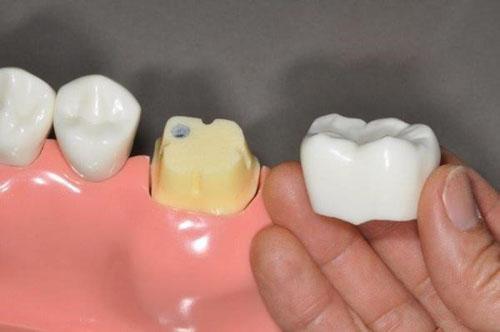 Tầm quan trọng của việc bọc răng sứ