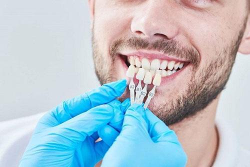 Thời gian bọc răng sứ nhanh chóng