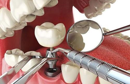 Trồng răng Implant phục hình răng mất hiện đại