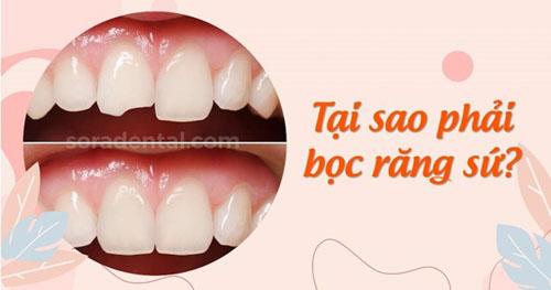 Vì sao cần bọc răng sứ sau khi chưa tủy?