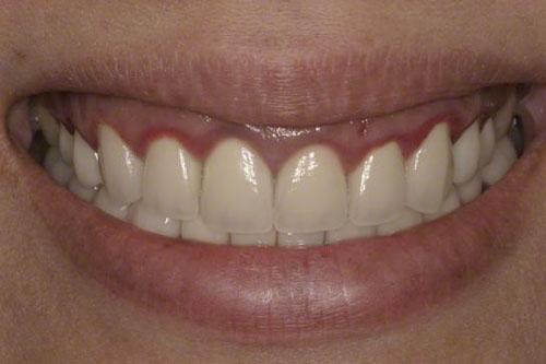 Viêm nướu răng sau khi bọc răng sứ